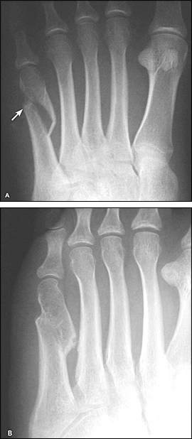 Non-union Jones fracture